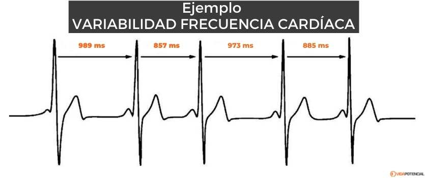 esquema variabilidad cardiaca