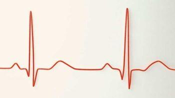 Qué es la variabilidad de la frecuencia cardíaca (HRV o VFC) y por qué medirla