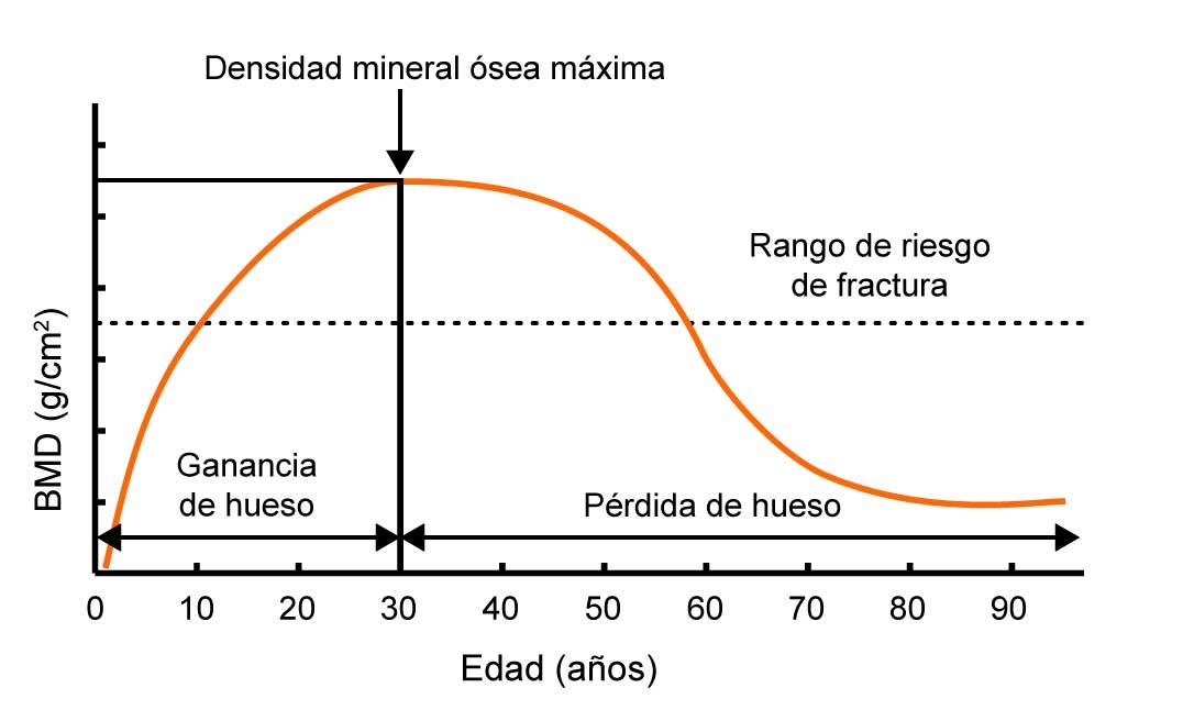 Gráfica de la evolución de la densidad ósea a lo largo de la edad
