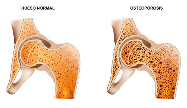 Diferencia entre un hueso sano y uno con osteoporosis