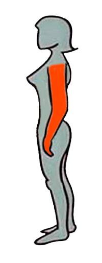 Tipo de obesidad por acumulación de grasa en los brazos
