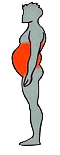 Tipo de obesidad por acumulación de grasa en el abdomen