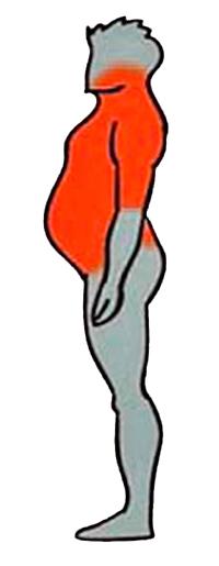 Tipo de obesidad por acumulación de grasa en el tronco